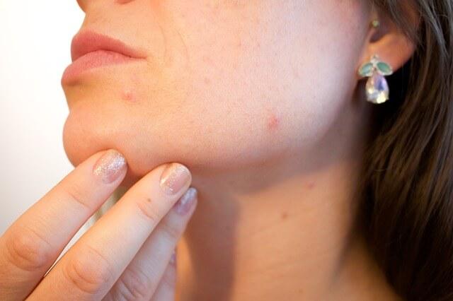 Medicine for Skin Problems